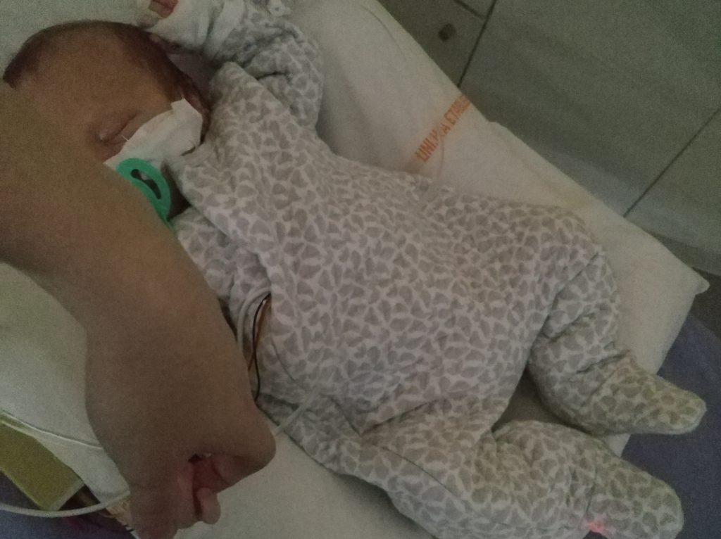 Bébé hospitalisé pour sténose du pylore